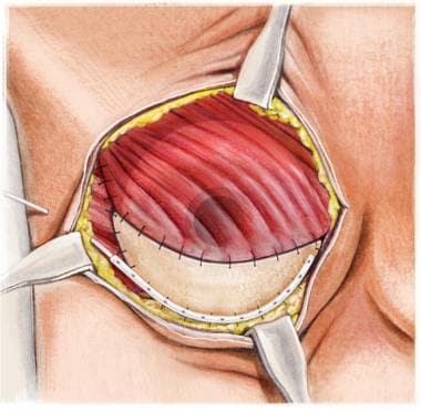 Tissue expander is placed in submuscular and subgr