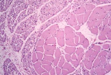 Werdnig-Hoffmann disease (infantile spinal muscula