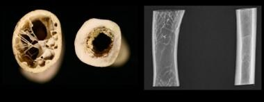 Cross-section of a bird (far left) and dog humerus