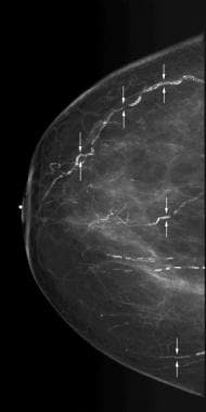 Scattered vascular calcifications with train track