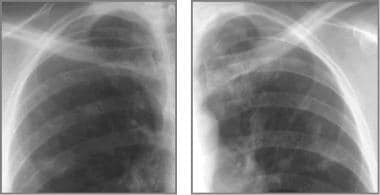Cystic fibrosis, thoracic. Coned-down views of eac