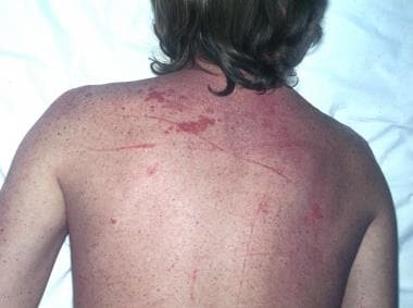 Sarcoidosis, thoracic. Crops of numerous papules o