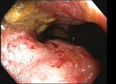 Endoscopic view of cecal lesion showing narrowed l