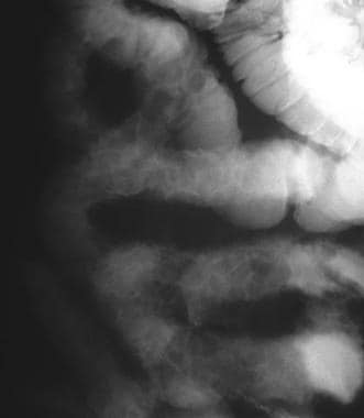 Crohn disease. The radiologic pattern shows cobble