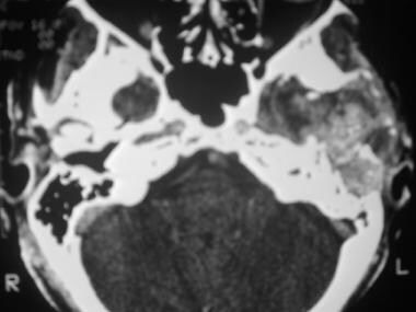Axial CT scan of the skull base shows a giant cell