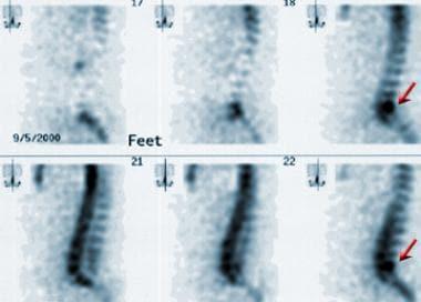 Sagittal single-photon emission computed tomograph