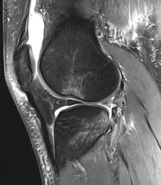 Pivot-shift twisting mechanism lateral bone bruise