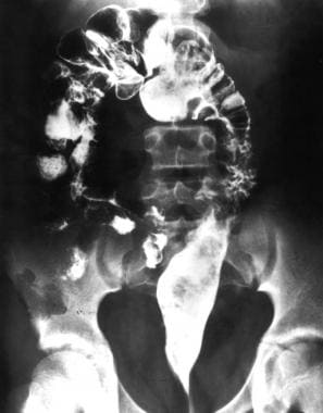 Contrast enema in a patient in whom the rectosigmo