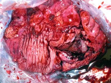 Surgical specimen after right hemicolectomy, inclu
