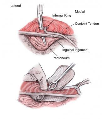 Open inguinal hernia repair. Development of preper