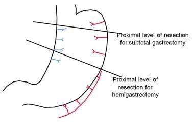 Diagrammatic representation of proximal line of re