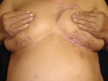 Submammary hidradenitis suppurativa in a patient w