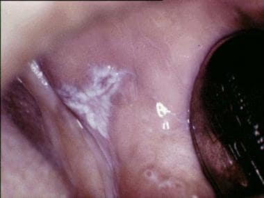 Plaquelike oral lichen planus on the buccal mucosa
