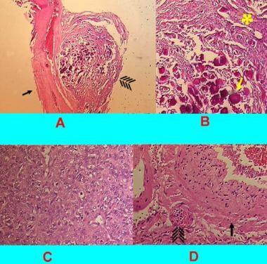 Pathology slides (hematoxylin-eosin; original magn