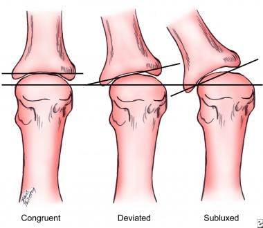 Congruency of first metatarsophalangeal joint.