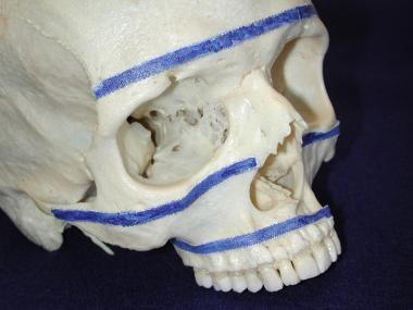 Horizontal buttresses of facial skeleton.