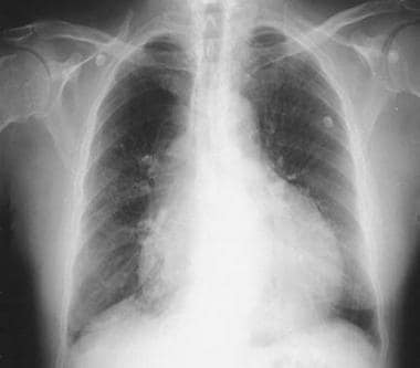 This image is from a patient with malignant perica