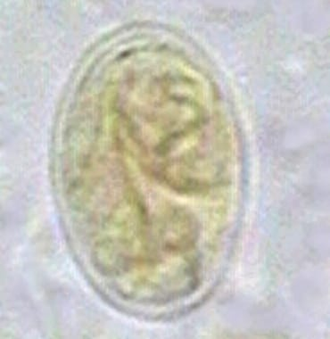 Giardia cyst.