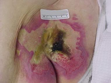 Image of advanced sacral pressure ulcer shows the