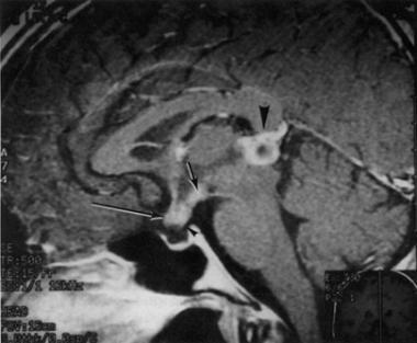 Gadolinium-enhanced MRI of a 33-year-old woman who