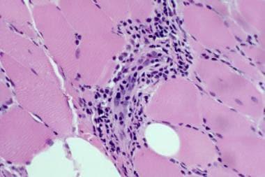 Hematoxylin and eosin paraffin shows dermatomyosit