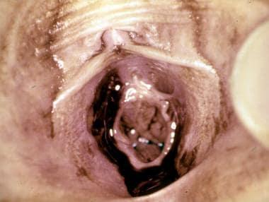 Genital examination of girl revealing bruising on