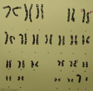 G-banded karyotype of a carrier father [46,XY,t(5;