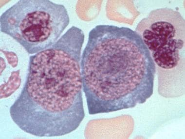 Bone marrow aspirate from a patient with untreated
