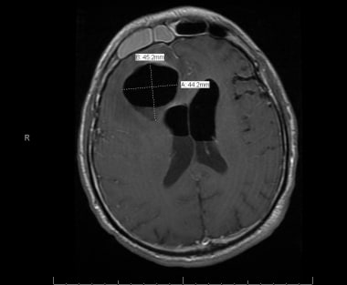Axial MRI image of a patient with acute frontal si