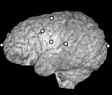 Craniosynostosis management. A 3-dimensional MRI e