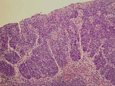 Squamous carcinoma in situ adjacent to the tumor.