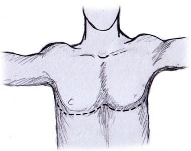 Clamshell incision (bilateral thoracosternotomy).