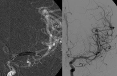 Angiographic view in the same patient (image on le