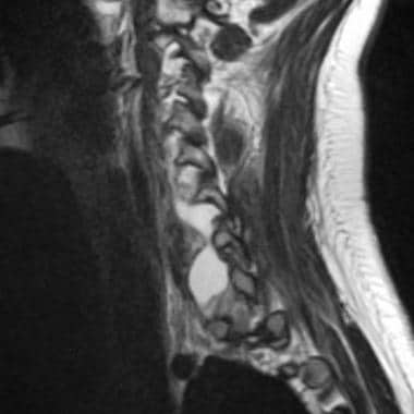 Avulsion in a 17-year-old female adolescent after