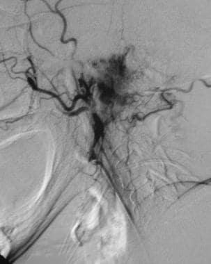 Glomus jugulare tumor. Selective external carotid