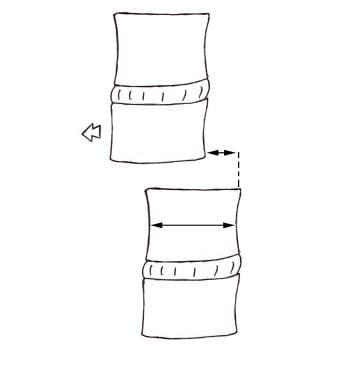 Spondylolisthesis. Diagram shows how to grade spon