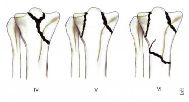 Tibial plateau fractures. Line drawings of Schatzk