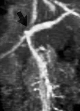 Contrast-enhanced 3-dimensional MR angiogram (grad