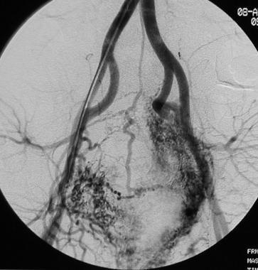 Vascular anomalies. Arteriovenous malformation (AV