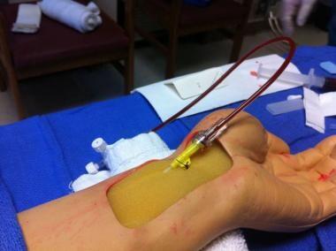 Radial artery cannulation (Seldinger). Attachment