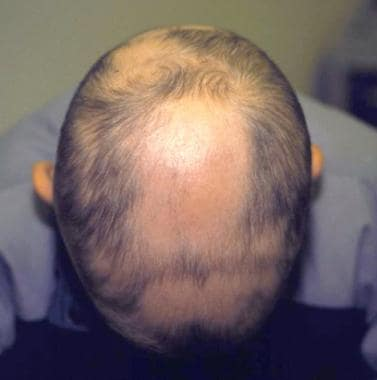 Patchy alopecia areata.