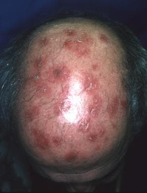 Multiple lesions on the scalp.