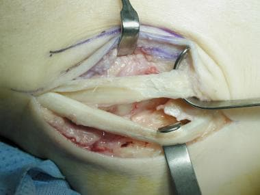Peroneus brevis above after resection of degenerat