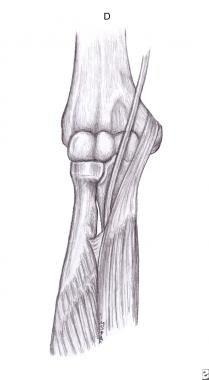 Fibrous arch of flexor digitorum superficialis.