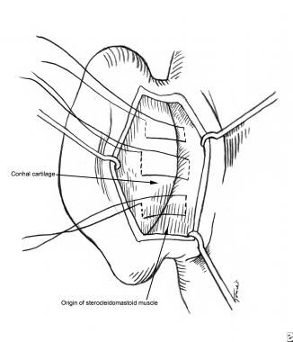 Concha-mastoid sutures and conchal nest. Sutures r
