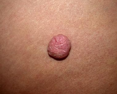 A pedunculated, flesh-colored cutaneous myxoma tha