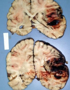 Traumatic intracerebral hemorrhage in the right fr