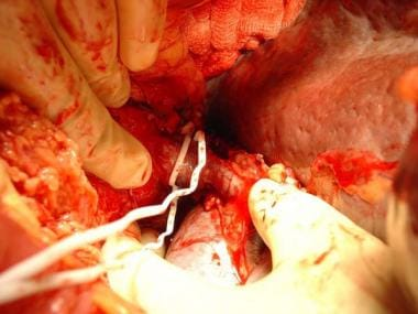Placement of vascular loops during dissection is r