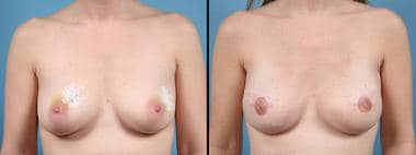 Acellular dermis–assisted 2-stage bilateral breast