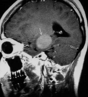 Sagittal T1-weighted MRI in a 23-year-old woman (s